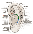 auricular ear acupuncture