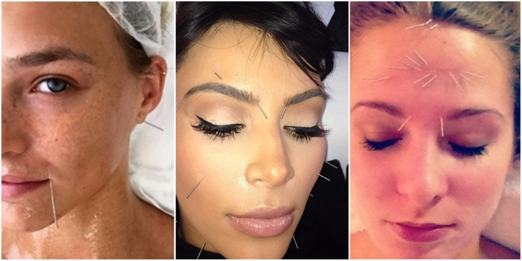 celebrities facial acupuncture 1024x512